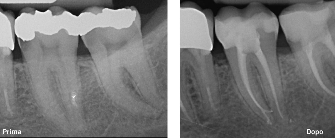 Carie secondaria: trattamento di due denti molari