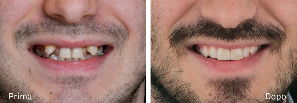 Risoluzione grave affollamento dentale con trattamento ortodontico e faccette in ceramica