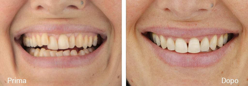Trattamento di una grave maloclusione in paziente adulta visione prima e dopo trattamento ortodontico tradizionale e ricostruzioni estetiche in composito