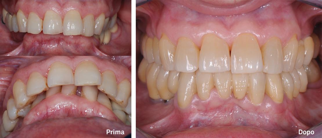 Riabilitazione protesica di un caso complesso mediante ortodonzia e chirurgia maxillo-facciale